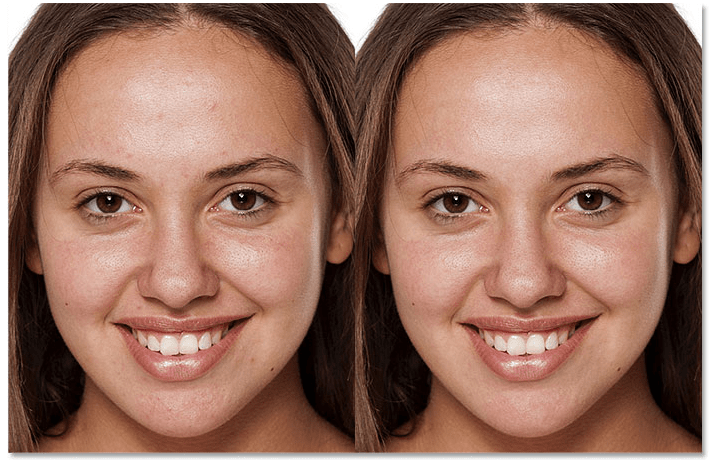 face retouching service, photoshop face retouching service